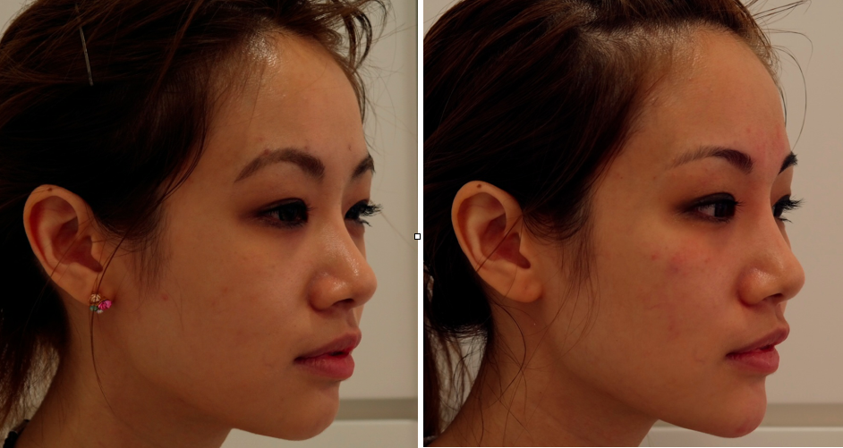 Cosmetic Procedure | All Things Aesthetic